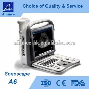便携式超声sonoscape A6 CE ISO FDA的黑与白