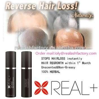 世界上最畅销的,创新的人的头发护理产品,防脱发,防止秃头房+生长的头发喷雾