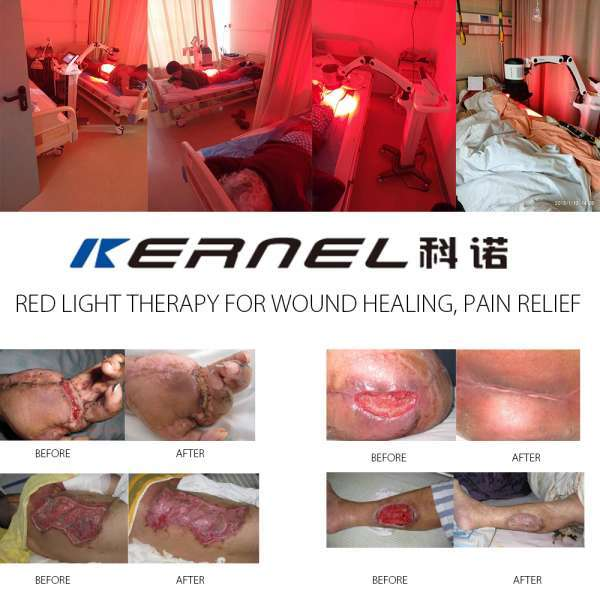 KERNEL KN-7000A2 LED PDT Device Wound Healing Pain Relief Anti